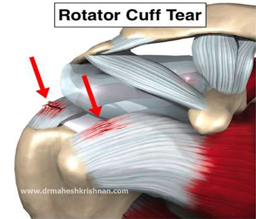 an analysis of rotator cuff New orleans — compared to patients who took a placebo after rotator cuff surgery results of the interim analysis of a randomized, double-blind.